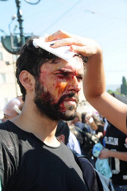 Демонстрант ПАМЕ, раненный камнями. Были ранены по крайней мере 80 демонстрантов, главным образом камнями и обломками мрамора, который провокаторы бросали в толпу демонстрантов